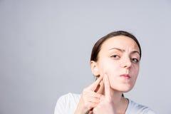 Giovane donna che punge i comedoni sulla sua guancia fotografia stock libera da diritti