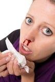 Giovane donna con il naso dell'emorragia isolato su bianco Immagini Stock
