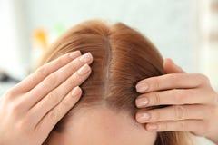 Giovane donna con il problema di perdita di capelli fotografie stock