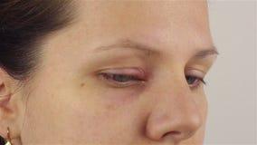 Giovane donna con la malattia di hordeolum nell'occhio archivi video