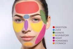 Giovane donna con la mappa del fronte dell'acne fotografia stock libera da diritti