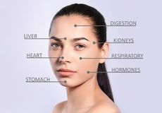 Giovane donna con la mappa del fronte dell'acne fotografia stock