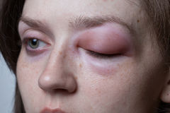 Giovane donna con reazione allergica - angioedema immagini stock libere da diritti