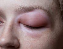 Giovane donna con reazione allergica sull'occhio fotografie stock libere da diritti