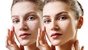 Giovane donna sensuale prima e dopo il trattamento della pelle fotografia stock libera da diritti