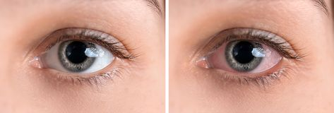 Giovane donna senza e con rossore dell'occhio, primo piano immagine stock