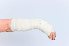 Giovane femmina con la mano rotta in colata Immagine Stock