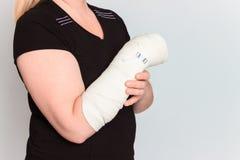 Giovane femmina con la mano rotta in colata Fotografia Stock