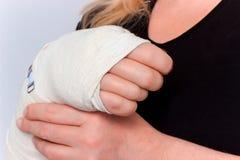 Giovane femmina con la mano rotta in colata Immagini Stock Libere da Diritti