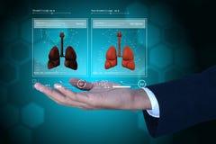 Giovane medico che mostra i polmoni Fotografie Stock Libere da Diritti