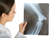 Giovane medico femminile che osserva le foto dei raggi X Fotografia Stock Libera da Diritti