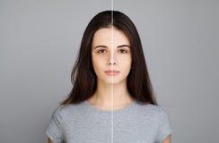 Giovane Woman di modello con il problema di pelle Fronte femminile Immagini Stock Libere da Diritti