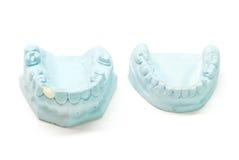Gipsbaumuster der menschlichen Zähne Stockbild