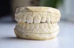 Gipseindruck von Zähnen mit Diastema Lizenzfreie Stockfotos