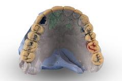 Gipsmodell av den mänskliga käken arkivbilder