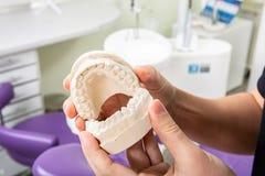 Gipsu model szczęka z zębami wewnątrz w rękach dentysta zdjęcia royalty free