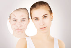 Girl with acne, grey gradient background. Girl with funny disgusted face examines her pimples royalty free stock photos