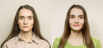 Girl with acne. A problem skin - Before and after Stock Photo