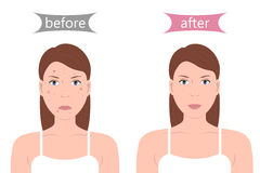 Girl with Acne Before and After Stock Photos