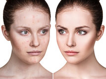 Girl with acne before and after treatment. Royalty Free Stock Images