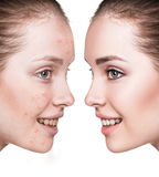 Girl with acne before and after treatment. Royalty Free Stock Photo