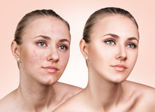 Girl with acne before and after treatment Royalty Free Stock Image