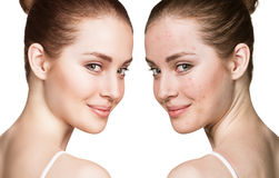 Girl with acne before and after treatment Royalty Free Stock Photo