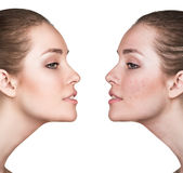 Girl with acne before and after treatment. Comparison portrait of young girl with problematic skin before and after treatment Stock Image