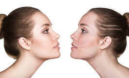 Girl with acne before and after treatment Stock Images