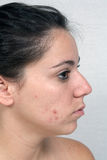 Girl with Acne (3) Stock Photography