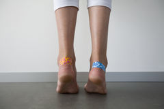 Girl with adhesive plasters on blisters stock photo