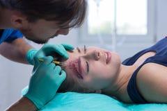 Girl with bleeding head wound stock photos