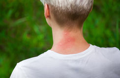 Girl with blond hair scratching bitten, red neck skin from mosquito bites Royalty Free Stock Photos