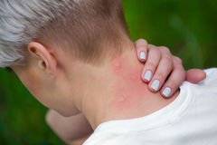 Girl with blond hair, sitting with his back turned and scratching bitten, red, swollen neck skin from mosquito bites. In the summer in the forest. Close-up up royalty free stock photos