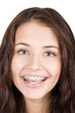 Girl with braces. Smile girl Stock Photography