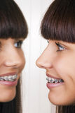 Girl with braces. Royalty Free Stock Image