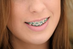 Girl with Braces. Girl with blue braces on her teeth Stock Images