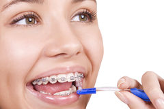Girl with braces brushing her teeth Stock Photos