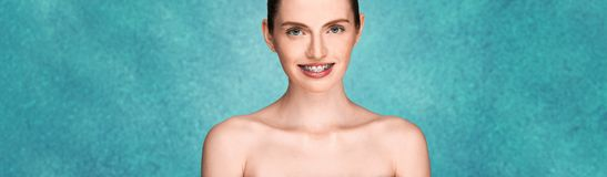 Girl with braces smiling broad smile royalty free stock photos