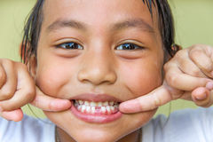 Girl broken tooth Royalty Free Stock Images