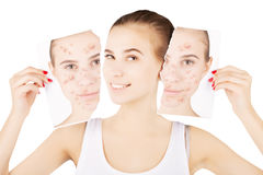 Girl celebrating her healthy skin, white background Stock Photography