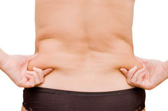Girl with a cellulitis on a stomach Stock Photography