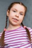 Girl with dental braces Stock Photos