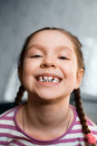 Girl with dental braces Royalty Free Stock Photography