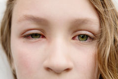 Girl with eye infection Royalty Free Stock Images