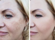 Girl face wrinkles before and after, correction cosmetic lifting pigmentation. Girl face wrinkles before and after pigmentation cosmetic lifting correction stock photography
