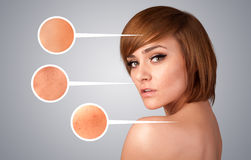 girl with facial care arrow signs of damaged skin Royalty Free Stock Photo