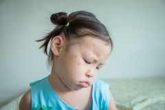 Girl feel sad about spot on her face from insects bite Royalty Free Stock Photography