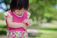 Girl has allergies with mosquitoes bite. Little Asian girl has allergies with mosquitoes bite royalty free stock images