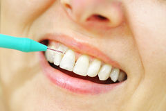 Girl with Interdental Brushes Stock Image